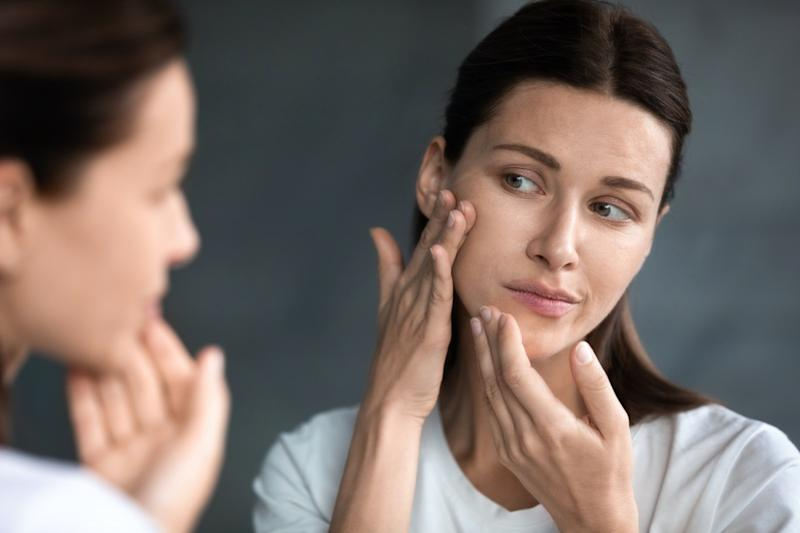 woman looking at red acne spots on chin in mirror, upset young female dissatisfied by unhealthy skin