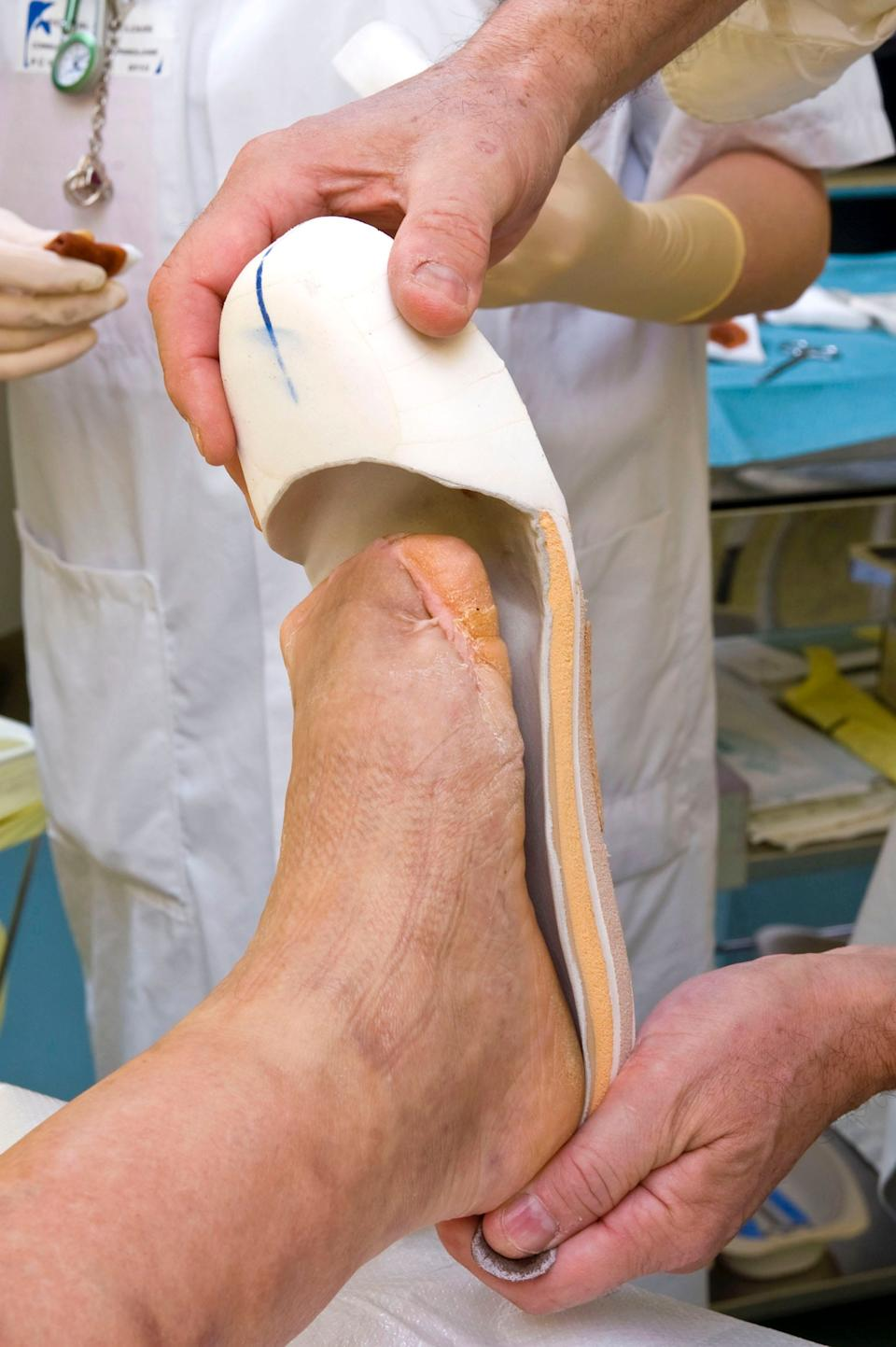 A diabetic's foot after a transmetatarsal amputation of toes and forefoot due to infected wounds.