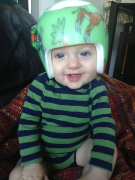 Why My Baby Wore A Helmet For 7 Months