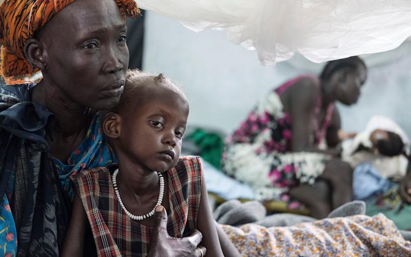 Nyalok Mabor with her daughter Dalia who is suffering from severe malnutrition in South Sudan - Copyright ©Heathcliff O'Malley , All Rights Reserved, not to be published in any format without prior permission from copyright