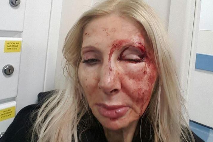 Savage attack: The woman, who does not wish to be named, was beaten up outside a Tube station: Metropolitan Police