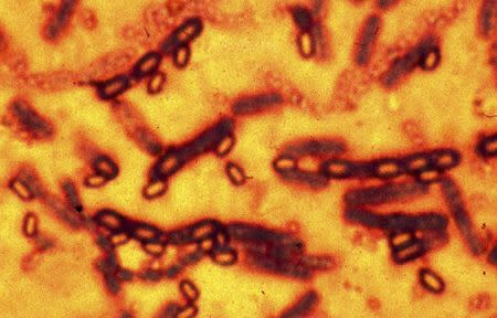 A microscopic picture of spores and vegetative cells of Bacillus anthracis which causes the disease anthrax