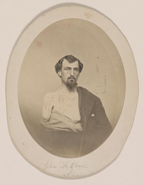 This undated handout image provided by the Library of Congress shows John F. Chase. who lost his right arm and left eye at Gettysburg, which is part of an exhibit at the Library of Congress of letters and diaries saved for 150 years from those who lived through the Civil War that offer a new glimpse at the arguments that split the nation. The Library of Congress holds the largest collection of Civil War documents. It has pulled 200 items from its holdings for a new exhibit to reveal both private and public thoughts from dozens of famous and ordinary citizens who lived in the North and the South. (AP Photo/Library of Congress)