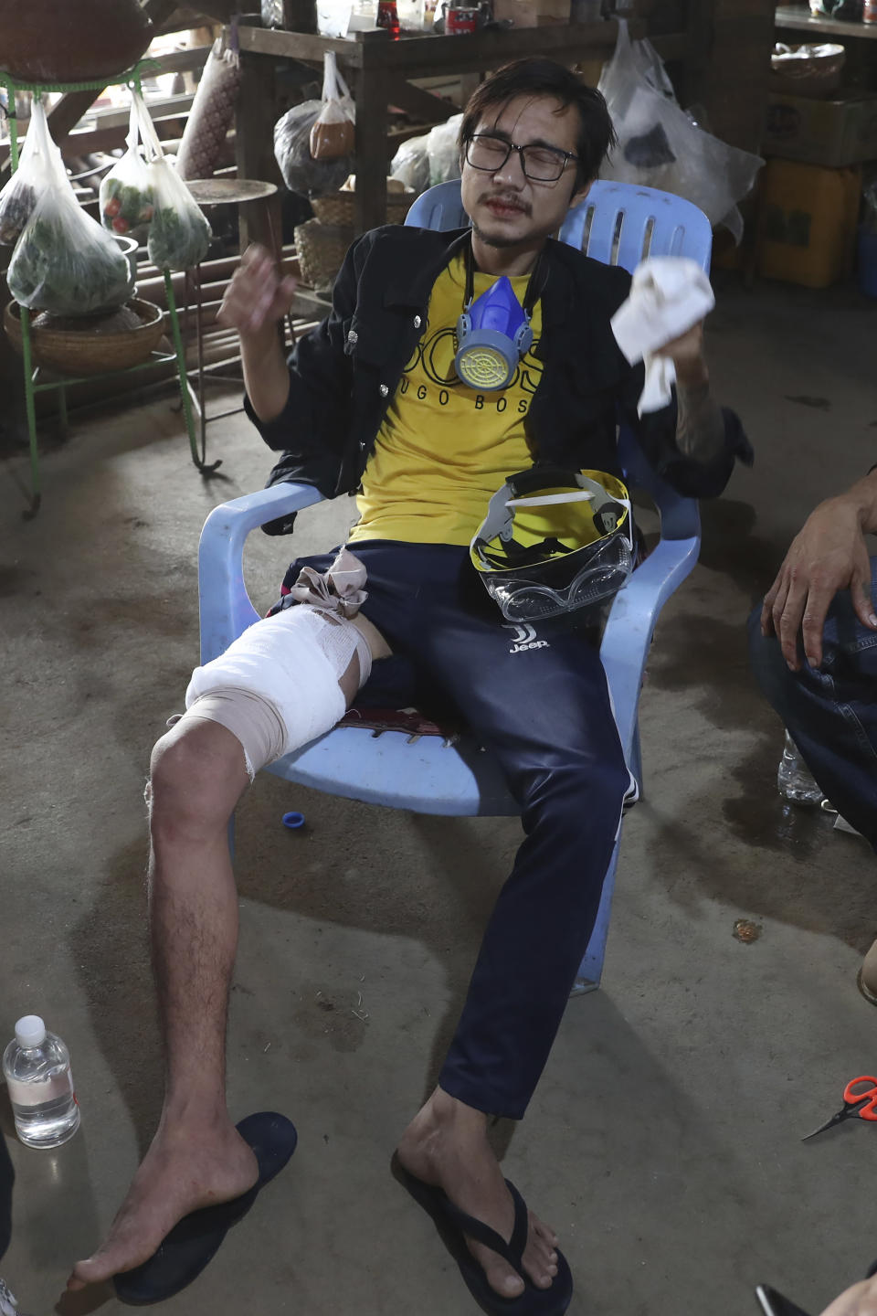 A man is injured on his right leg after security forces dispersed an anti-coup demonstration in Mandalay, Myanmar, Saturday, March 13, 2021. Police in Myanmar fired rubber bullets and tear gas at protesters in the country's two largest cities and elsewhere on Friday, as authorities continued their harsh crackdown on opponents of last month's military coup. (AP Photo)