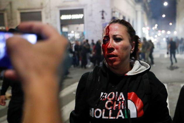 SENSITIVE MATERIAL. THIS IMAGE MAY OFFEND OR DISTURB A demonstrator is injured during a protest against the government's introduction of the