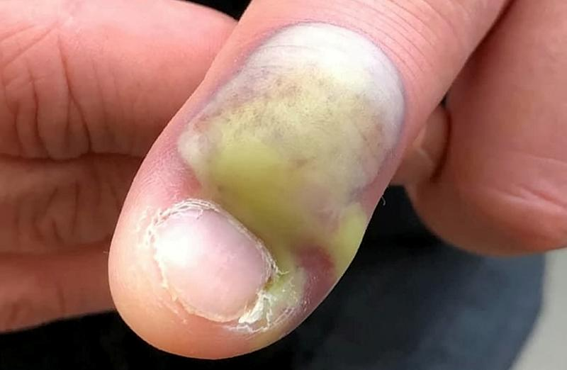 Steven's infected nail was swollen and leaking green puss [Photo: SWNS]
