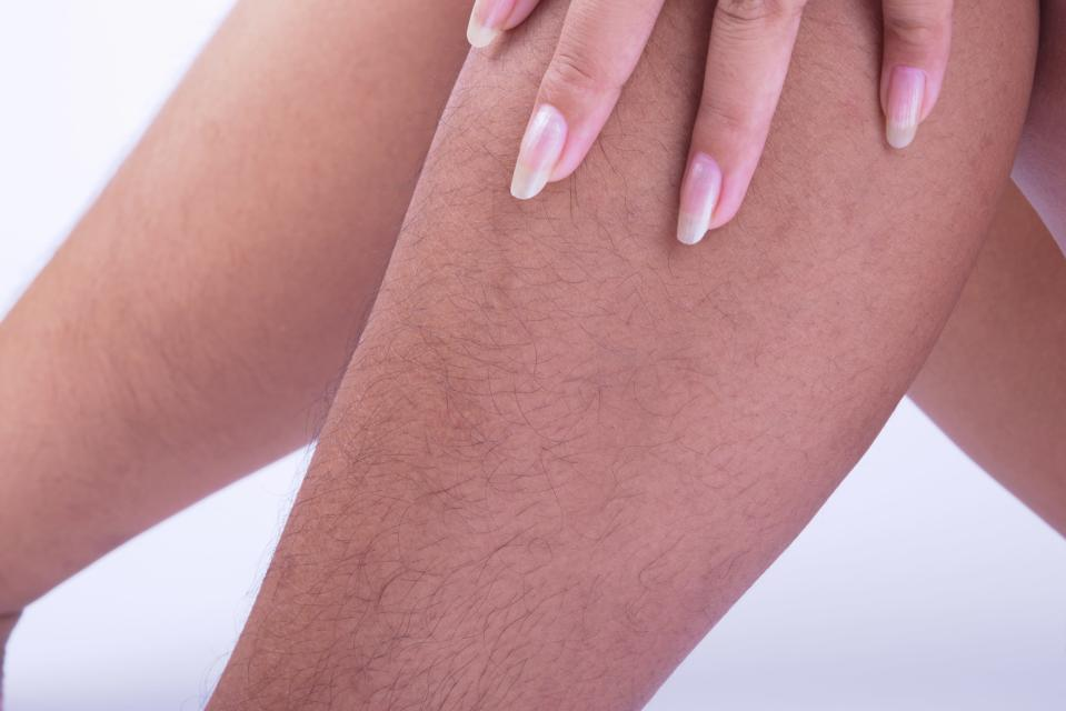 A woman has turned to the Internet for advice about whether her husband is right to criticise her body hair [Photo: Getty]