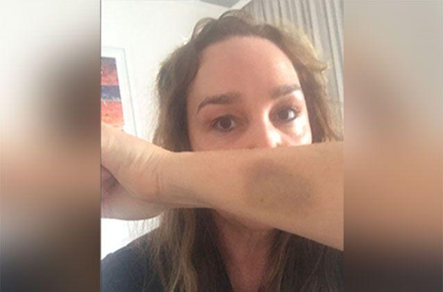 Earlier this week Kate showed off a bruise from the alleged attack outside her St Kilda home. Source: Kate Langbroek / Twitter