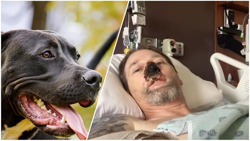 'I'll Always Love Dogs,' Says Man Who Lost His Limbs After Getting Licked By Pet
