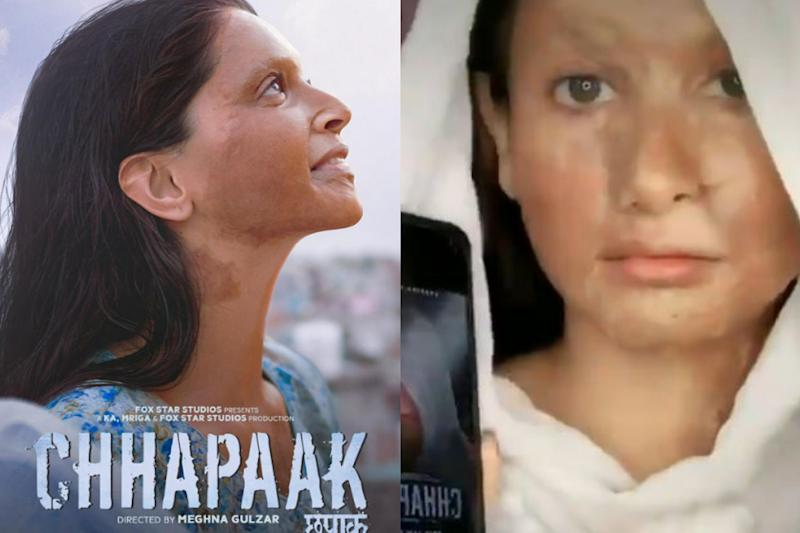 Deepika Padukone Trolled for Turning Chhapaak Look Into TikTok Challenge
