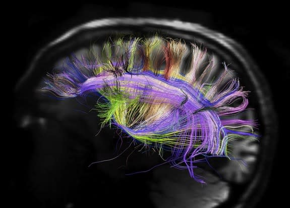 Understanding the human brain will require a knowledge of its wiring and its interactive functioning.