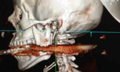 Brazil Harpoon Accident: Woman Shot In Mouth