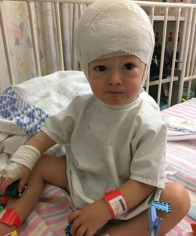 Nixon had six surgeries and 10 rounds of chemo by the time he was 18 months. Photo: Supplied