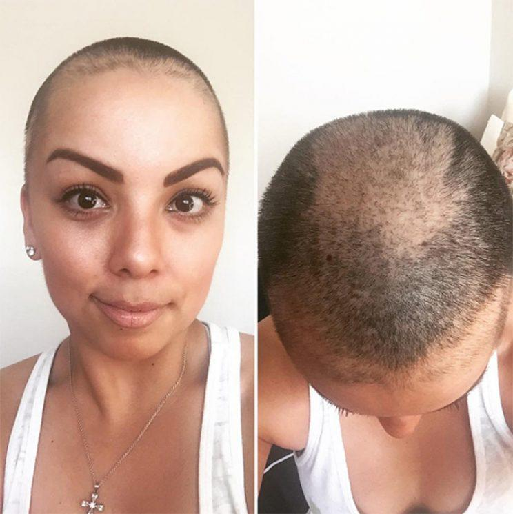 Woman Posts Herself Without a Wig and Reveals The Real Reason She Lost Her Hair (Photo: la_mari_mar27/Instagram)