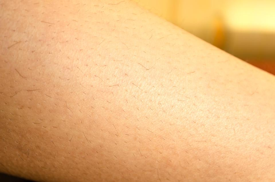 Should we embrace our body hair? [Photo: Getty]