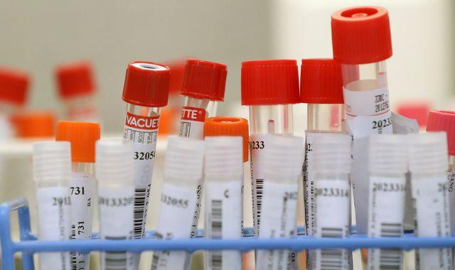 Coronavirus: Two patients in Europe catch COVID-19 for a second time - reports
