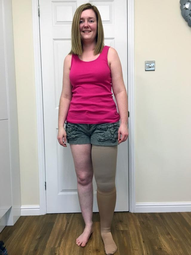 Woman's leg doubles in size after honeymoon infection