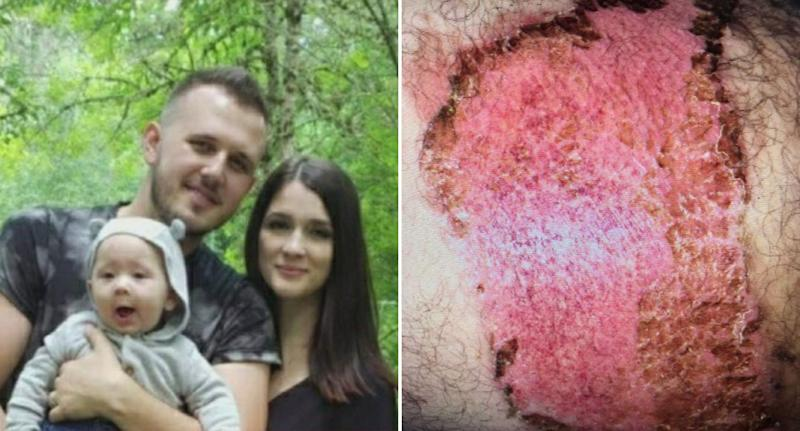 Pictured left is Tommy Piluyev and his wife Liudmila Maftey. Right is a picture of a large burn on a thigh. Source: CBS Sacramento
