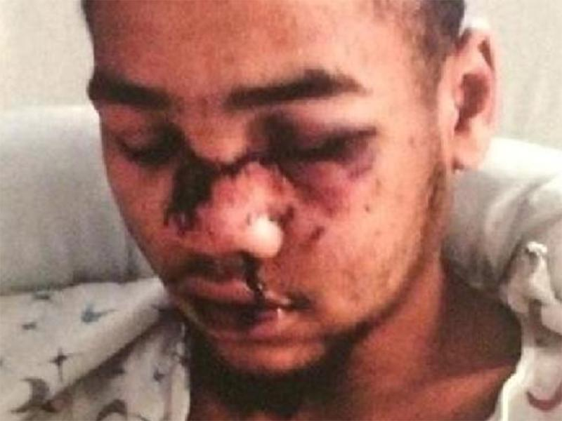 Tyran Dobbs suffered broken facial bones, a fractured rib and bruised lungs after being shot with rubber bullets by police: Screengrab