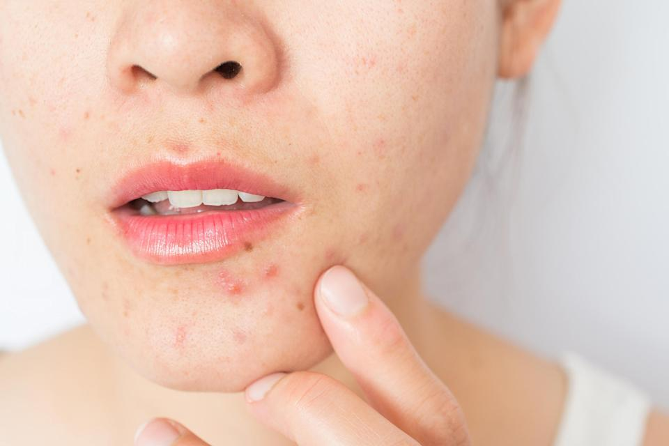 Closeup of woman with acne inflammation (Papule and Pustule) on her face. (Boy_Anupong / Getty Images stock)