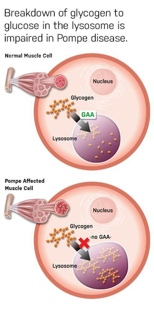 This graphic shows how the breakdown of glycogen in the lysosome is impaired in individuals with Pompe disease. — Picture courtesy of Dr Ngu Lock Hock
