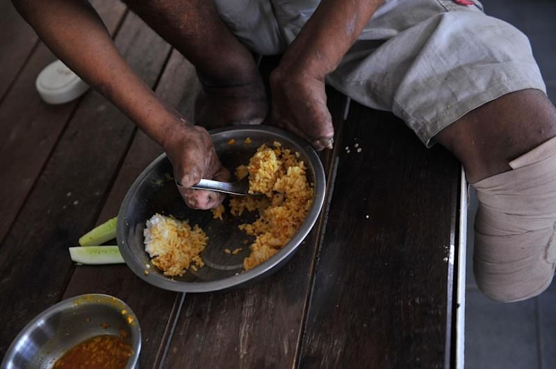 A patient has a meal at the Mawlamyaing Christian Leprosy Hospital in Mawlamyaing on March 13, 2014 (AFP Photo/Ye Aung Thu)