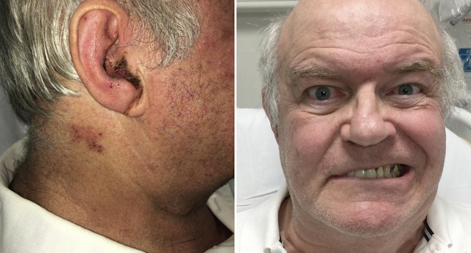 A man's ear is seen with a rash. He's also pictured trying to smile with partial face paralysis.