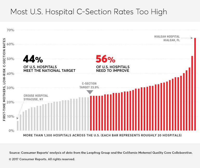 Your Biggest C-Section Risk May Be Your Hospital