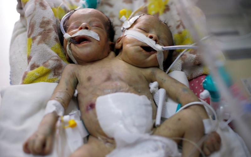 Newly born conjoined twins lie in an incubator at the child intensive care unit of al-Thawra hospital in Sanaa, Yemen  - Reuters