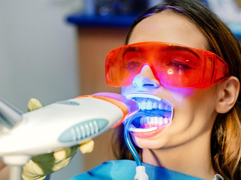 Stock image of a woman having her teeth whitened: iStock