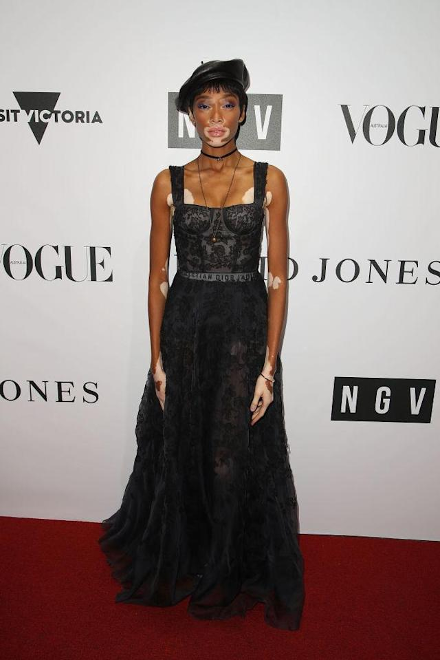Winnie Harlow at the NGV Gala at NGV International on August 26, 2017 in Melbourne, Australia (Photo: Getty Images).