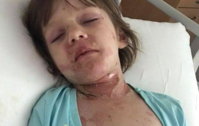 The four-year-old has lost 80 per cent of her skin. Source: Facebook/ Support for Avery's Journey