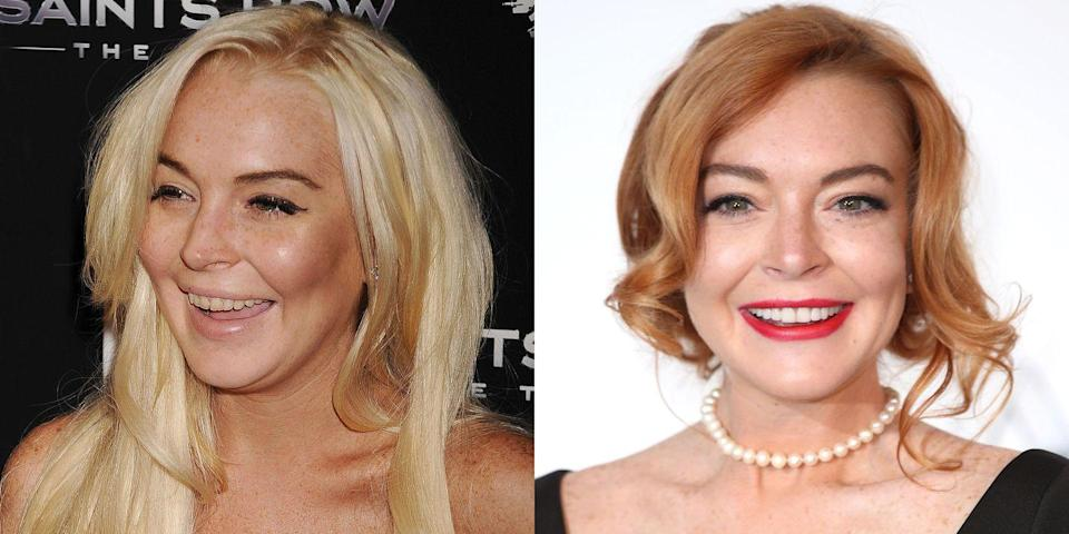 "<p>""Lindsay is proof that a small amount of dentistry can go along way. It appears she had some dental bonding on her front teeth to correct the chipping and discoloration. Bonding, combined with professional bleaching, appears to have created a whiter and healthier look. Like all things in life, bleaching requires upkeep, which can get expensive.""</p>"