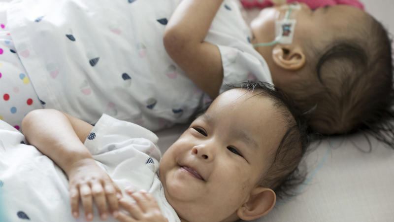 Conjoined Twins Successfully Separated in Australia Still Want to Be Very Close