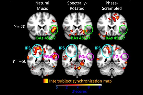 These fMRI images show areas of the fronto-parietal cortex that responded in similar ways across study participants as they listened to three variations of a symphony. Synchronization was strongest when participants listened to the original, un