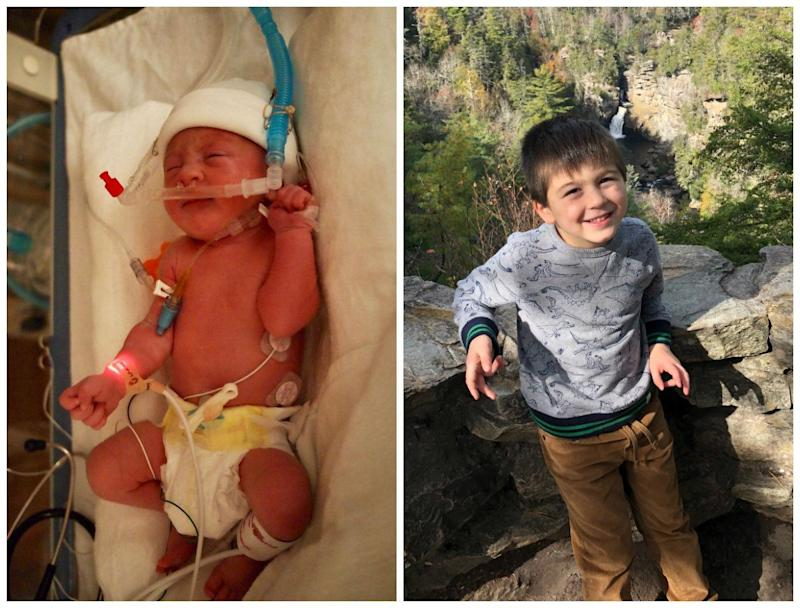 Oliver was born six weeks early, and we were very fortunate that his NICU stay was shorter than expected. Today, he is a happy, healthy, sweet and energetic 4-year-old boy who never stops moving!<br /><br /><i>-- Stacie</i>