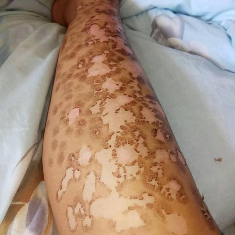 As her legs heal, the burned skin is peeling off but the new skin cannot be exposed to the sun. Source: Facebook