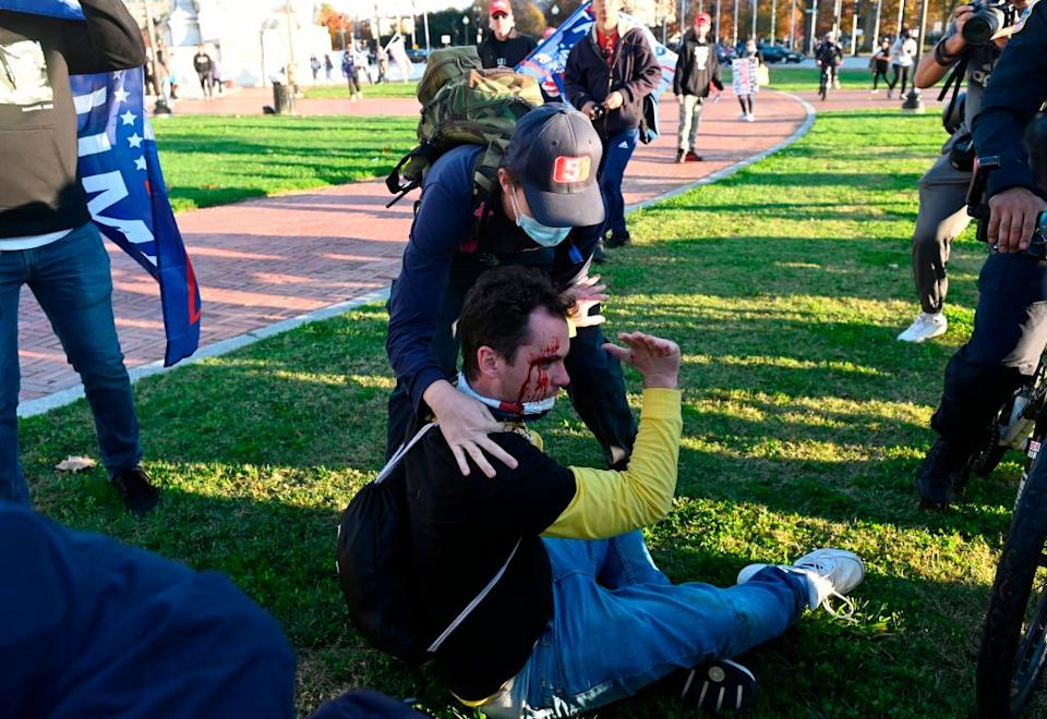 An injured supporter of US President Donald Trump is helped after being assaulted by an unknown assailant in Washington, DC.