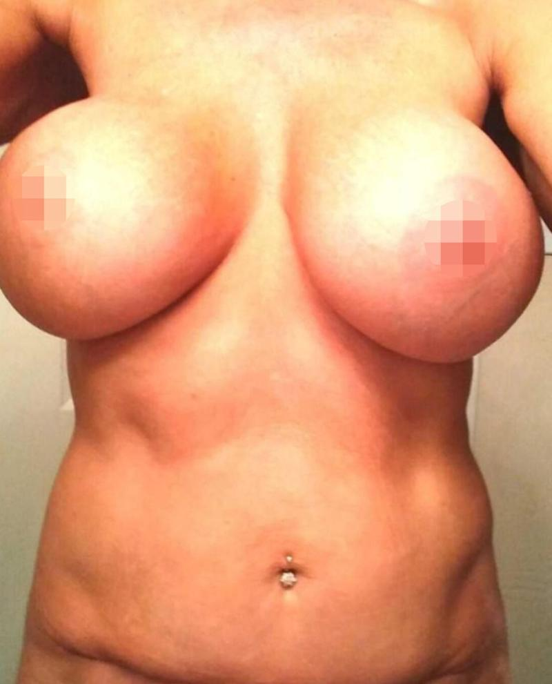 Jane Learner, 58, was left trying to find bras and clothing to push her breasts down because she felt so self conscious about her new size. Source: Caters News