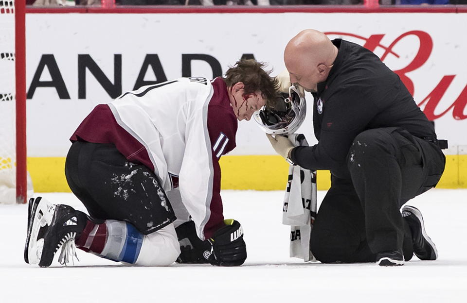 A trainer removes the helmet of Colorado Avalanche's Matt Calvert after Calvert was struck by the puck while blocking a Vancouver Canucks shot during the third period of an NHL hockey game Saturday, Nov. 16, 2019, in Vancouver, British Columbia. (Darryl Dyck/The Canadian Press via AP)