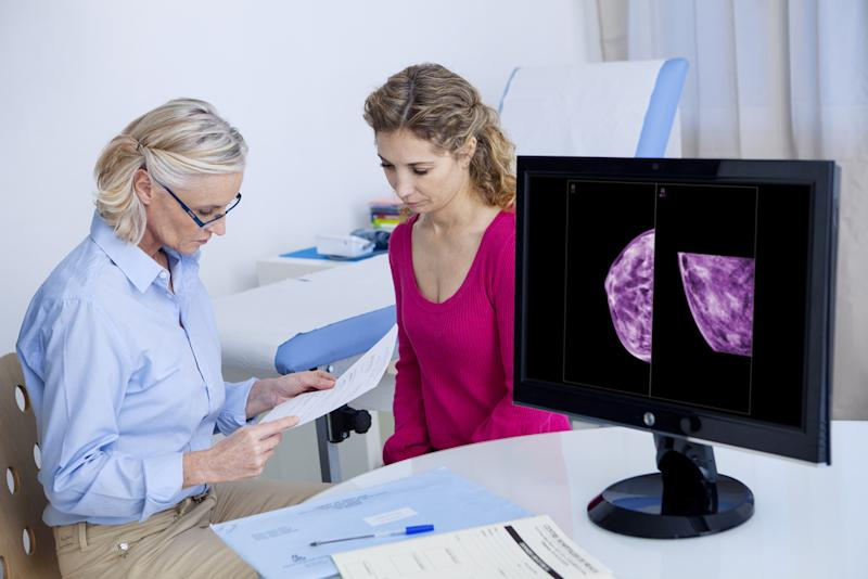 cancer experts Breast