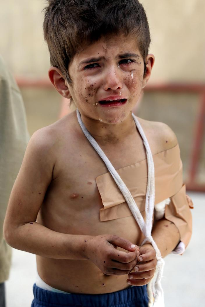 A Syrian girl, Bushra al-Hassan, 4, injured from a government airstrike, cries at Jabal al-Zaweya village of Sarjeh, in Idlib, Syria, Monday Feb. 25, 2013. Syria is ready to hold talks with the armed opposition trying to topple President Bashar Assad, the country's foreign minister said Monday, in the government's most advanced offer yet to try to resolve the 2-year-old civil war through negotiations. (AP Photo/Hussein Malla)