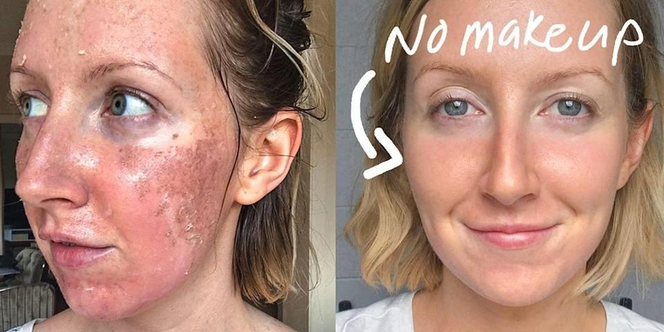 <p>You can literally peel away all of your skin imperfections. </p>