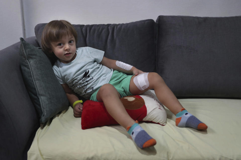CORRECTS THE FAMILY NAME OF THE BOY - Three-year-old Abed Itani lies on a sofa at his family house in Beirut, Lebanon, Tuesday, Aug. 11, 2020. Abed was playing with his Lego blocks when the huge blast ripped through Beirut, shattering the nearby glass doors. He had cuts on his tiny arms and feet, a head injury, and was taken to the emergency room, where he sat amid other bleeding people. (AP Photo/Bilal Hussein)
