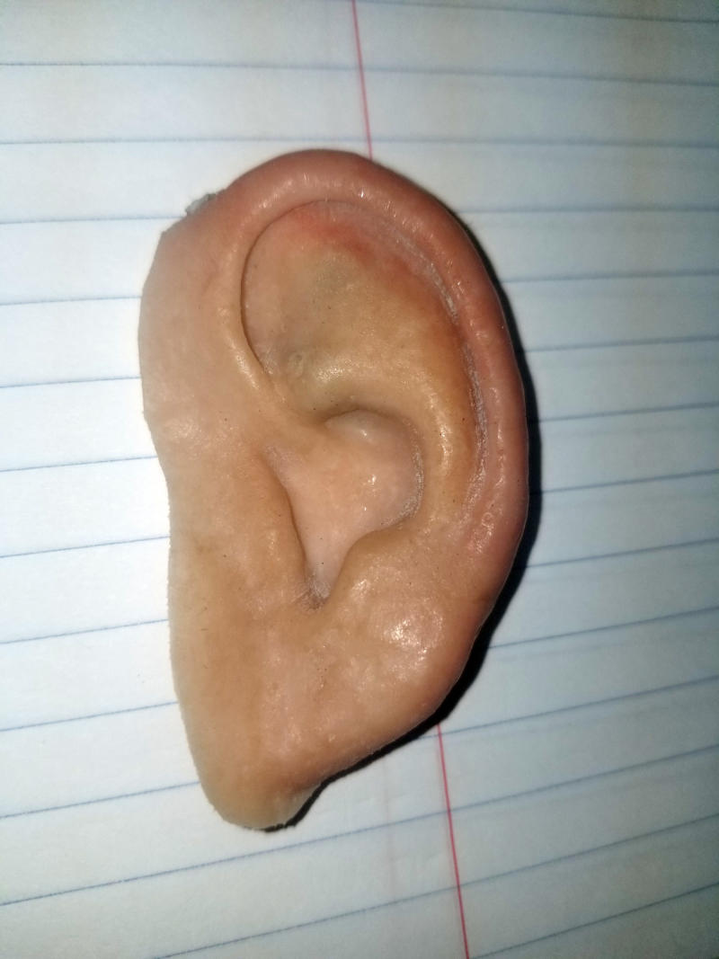 Prosthetic Ear Found