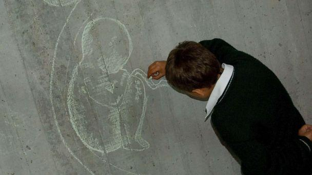 PHOTO: A child draws a fetus on a blackboard during a reproductive health class in Colombia, April 8, 2007. (Joana Toro/dpa via Newscom, FILE)