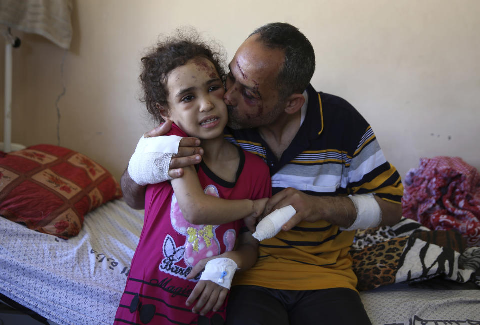 Suzy Ishkontana, 7, is kissed by her father Riad Ishkontana, 42, at Shifa Hospital in Gaza City, Tuesday, May 18, 2021. Suzy and her father Riad were the only survivors of their family after an Israeli airstrike destroyed one of the buildings they lived in in Gaza City early Sunday, killing her mother and four siblings. The man and his daughter were pulled alive from under the rubble after several hours. (AP Photo/Abdel Kareem Hana)