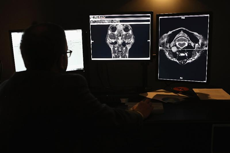 Real-time imaging in lab monkeys points to the havens where HIV lurks  after being beaten back by drugs