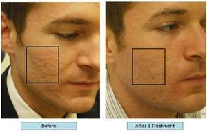Fractional Laser Resurfacing For Serious Skin Issues