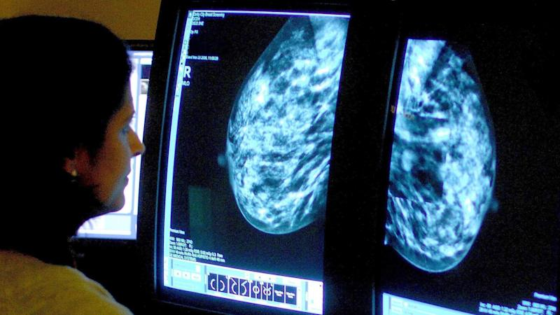 AI system can detect breast cancer better than clinical experts – study